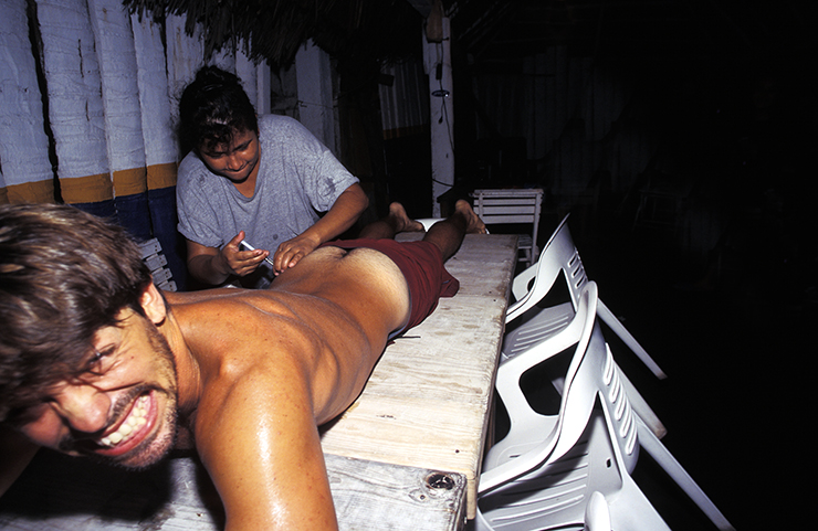 A man getting a penicillin injection from a waitress in a local cantina after going into anaphylactic shock from a jellyfish sting. The waitress was the only person in town who knew how to administer an injection.